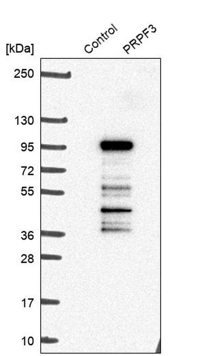 PRPF3 Antibody in Western Blot (WB)