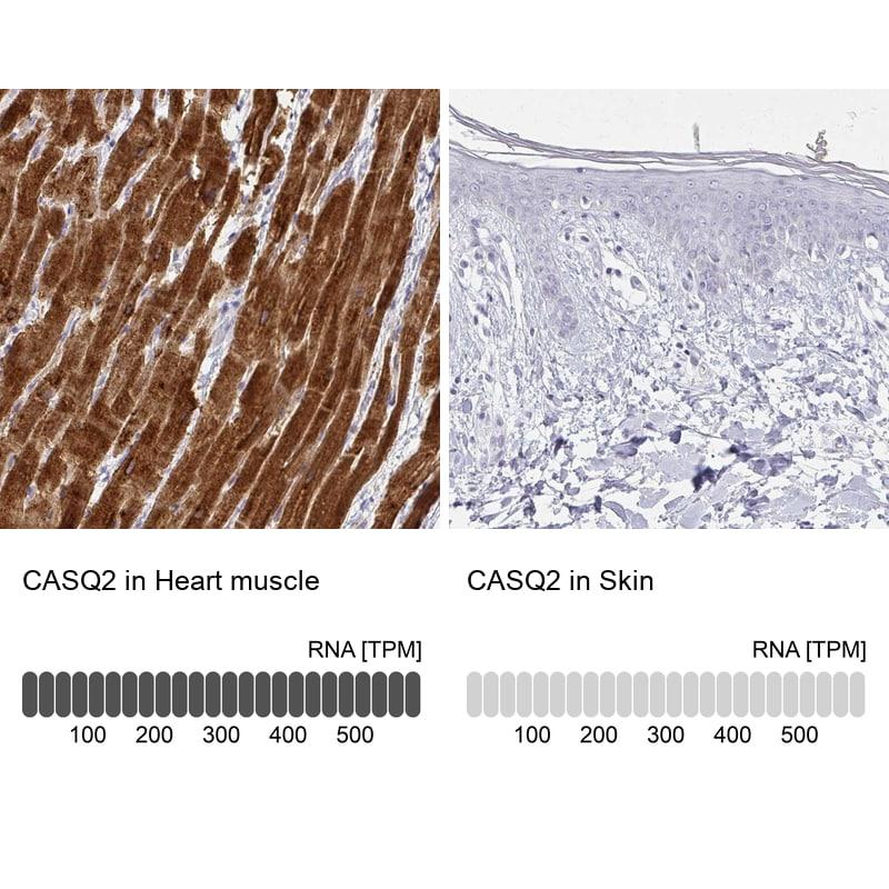 Calsequestrin 2 Antibody in Relative expression
