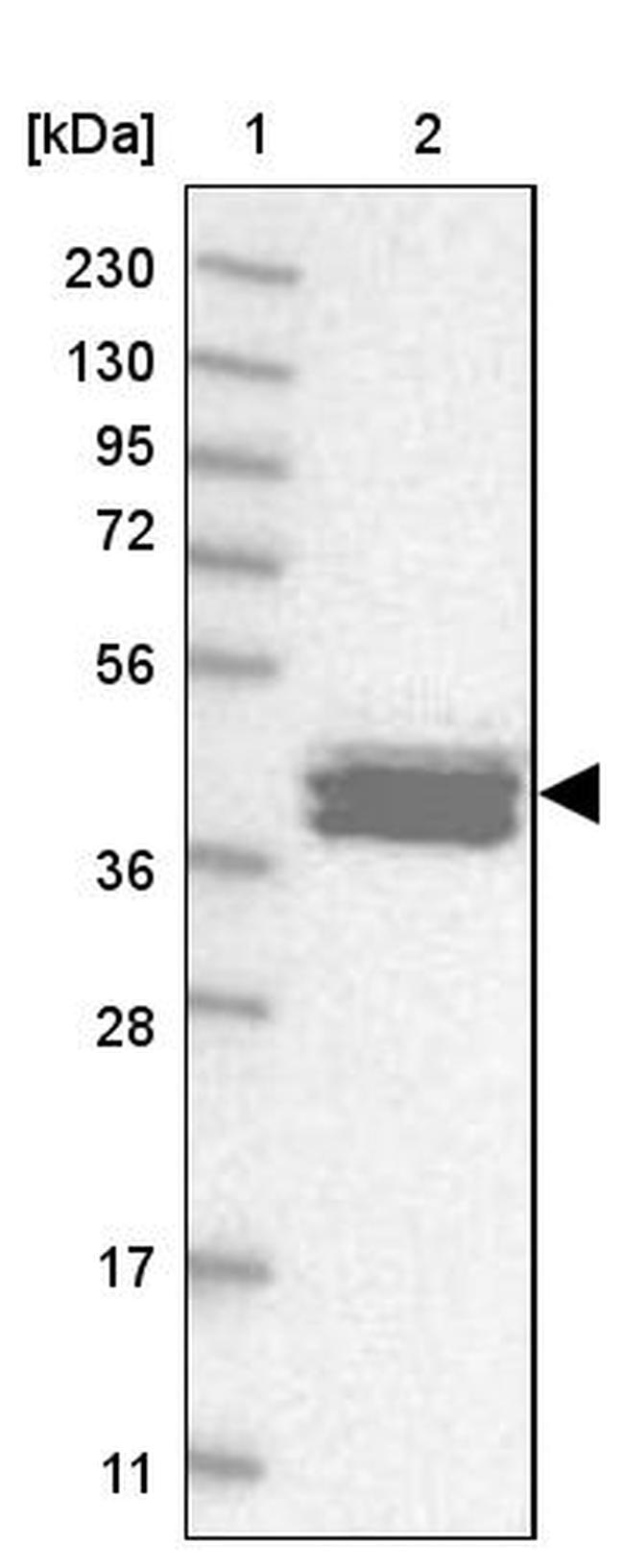 Calsequestrin 2 Antibody in Western Blot (WB)