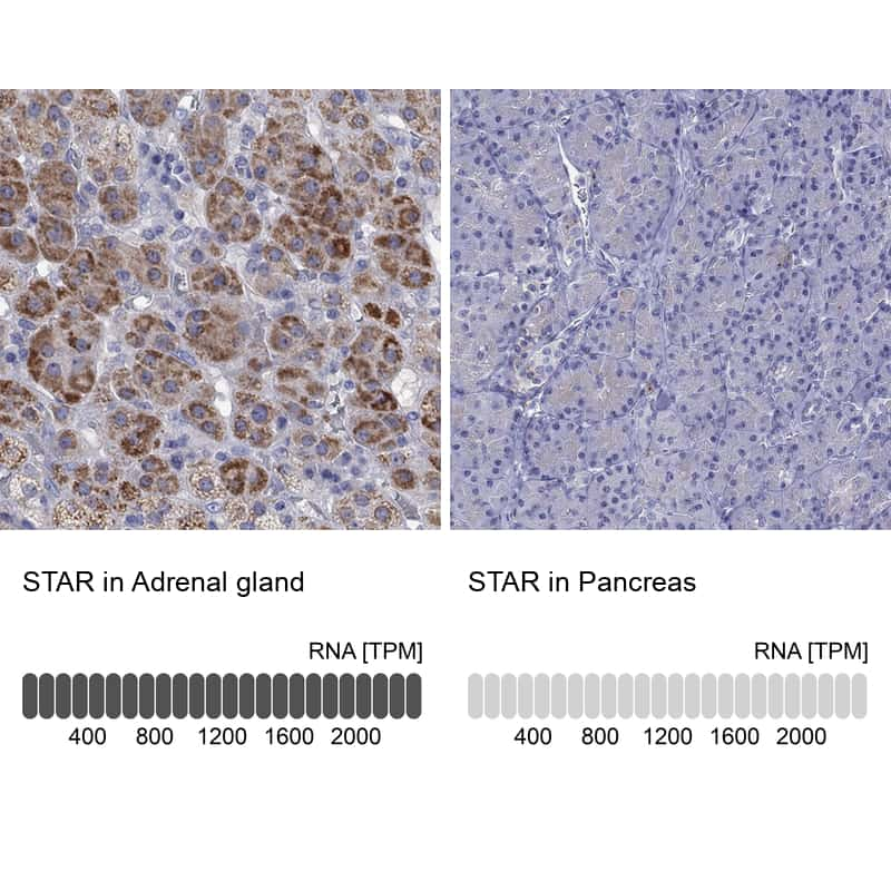 STAR Antibody in Immunohistochemistry (IHC)