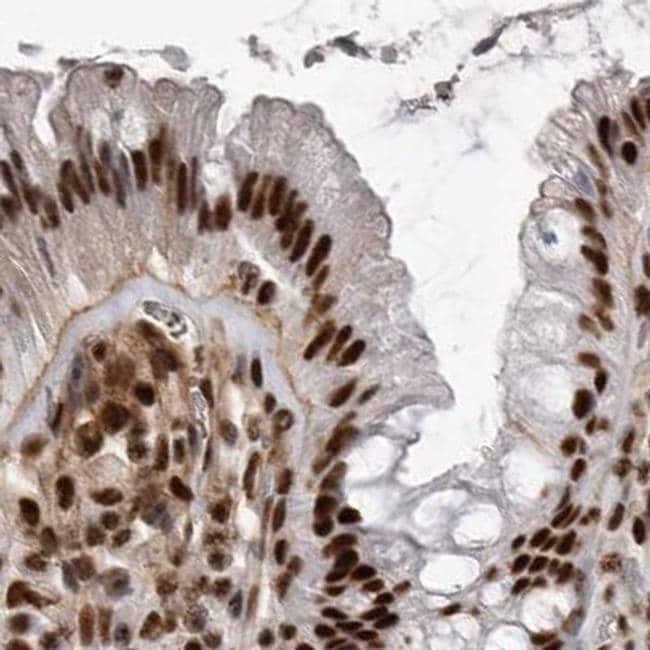 PPP1R8 Antibody in Immunohistochemistry (IHC)