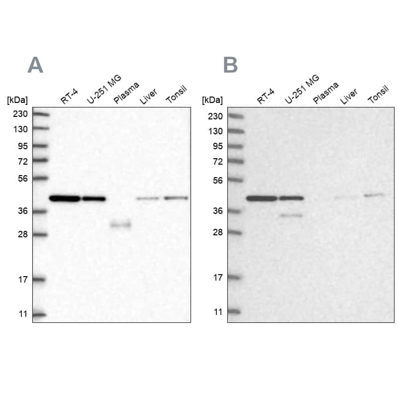 PPP1R8 Antibody in Western Blot (WB)
