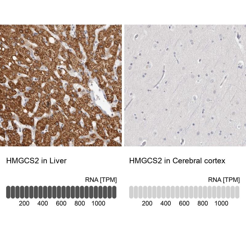 HMGCS2 Antibody in Relative expression