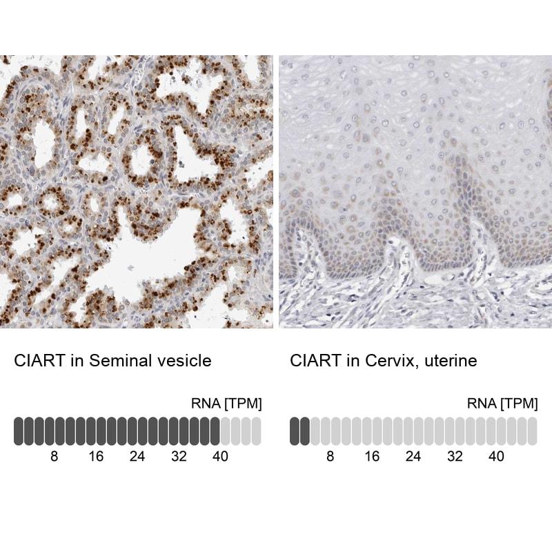 C1orf51 Antibody in Immunohistochemistry (IHC)