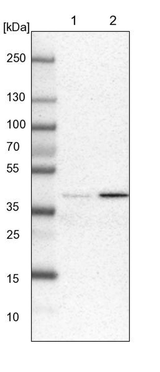 C1orf51 Antibody in Western Blot (WB)