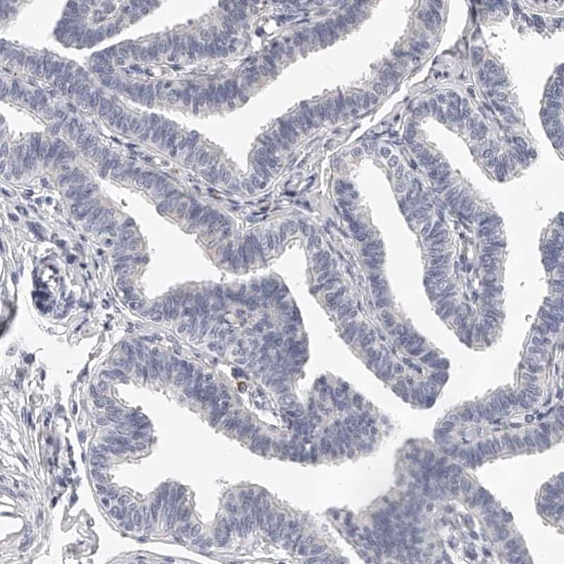 DMRT1 Antibody in Immunohistochemistry (IHC)