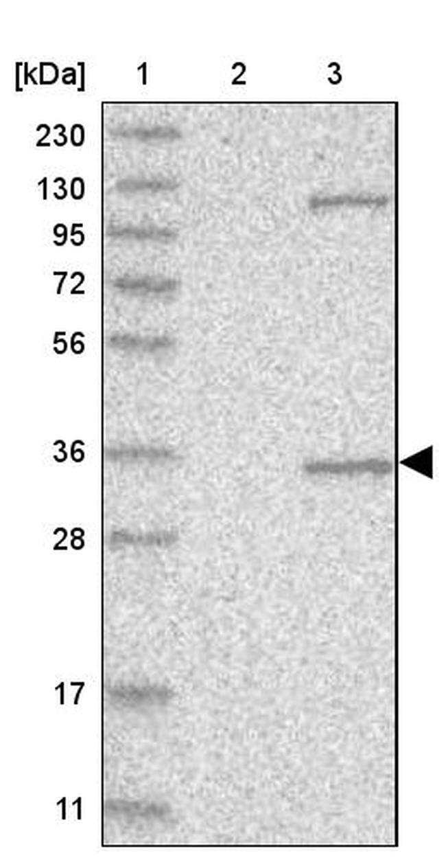 AIDA Antibody in Western Blot (WB)