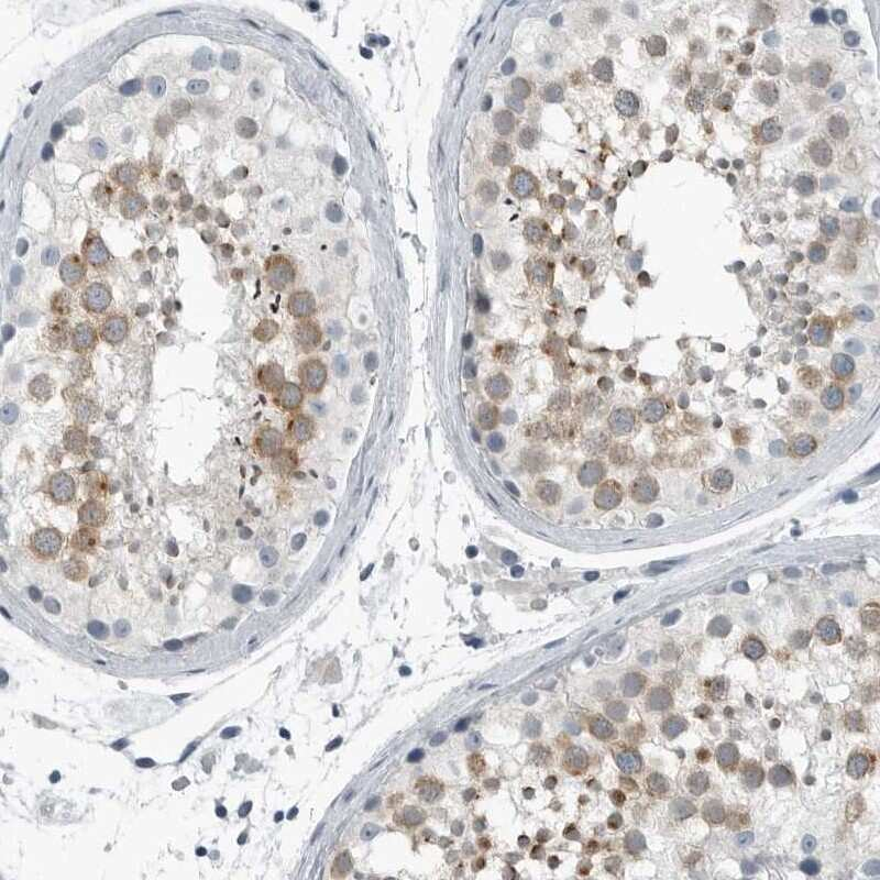 ZPBP2 Antibody in Immunohistochemistry (IHC)