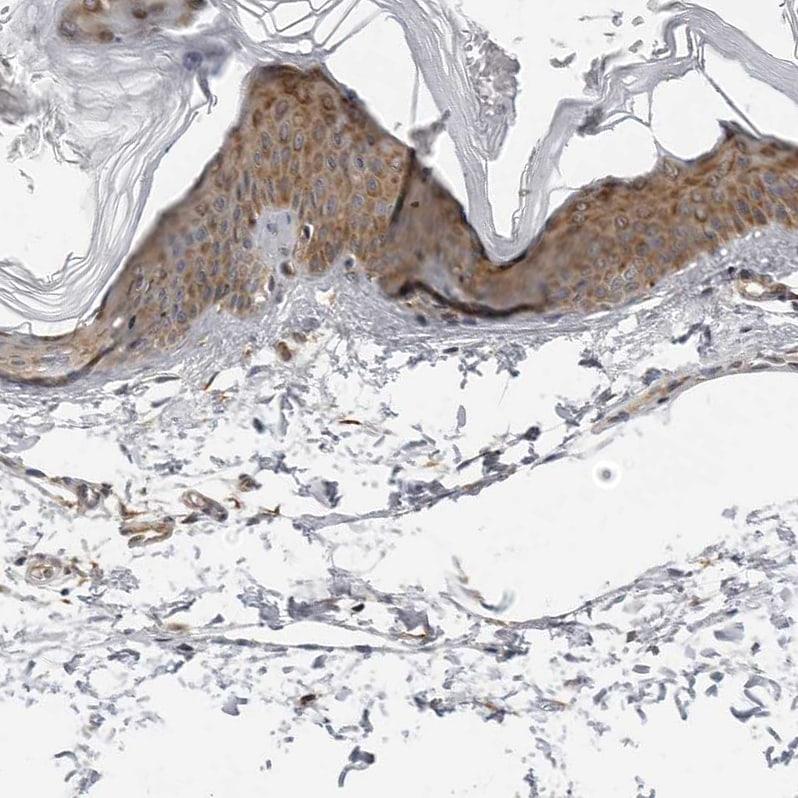 SRGAP2 Antibody in Immunohistochemistry (IHC)