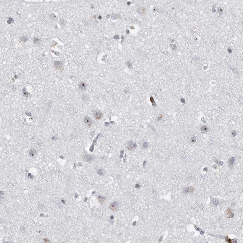 DDX54 Antibody in Immunohistochemistry (IHC)
