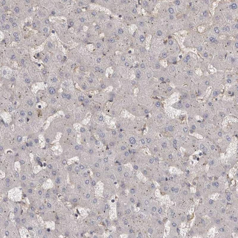 ENAH Antibody in Immunohistochemistry (IHC)