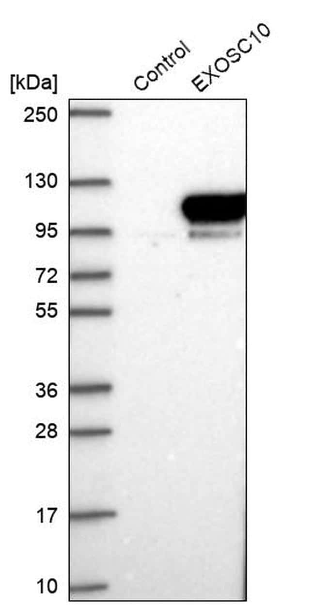 PM-Scl Antibody in Western Blot (WB)