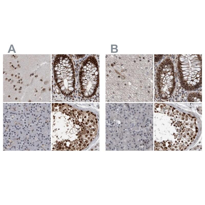 CHD1L Antibody in Immunohistochemistry (IHC)