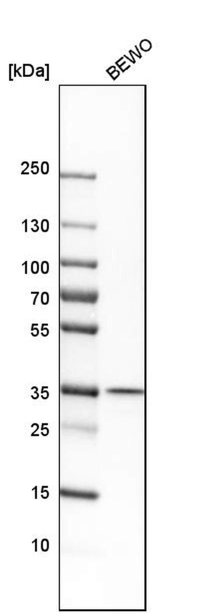 MOSC1 Antibody in Western Blot (WB)