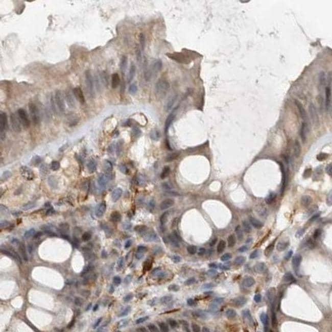 UFC1 Antibody in Immunohistochemistry (IHC)