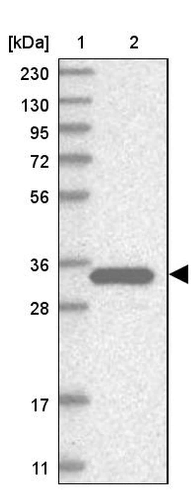 SULT1E1 Antibody in Western Blot (WB)