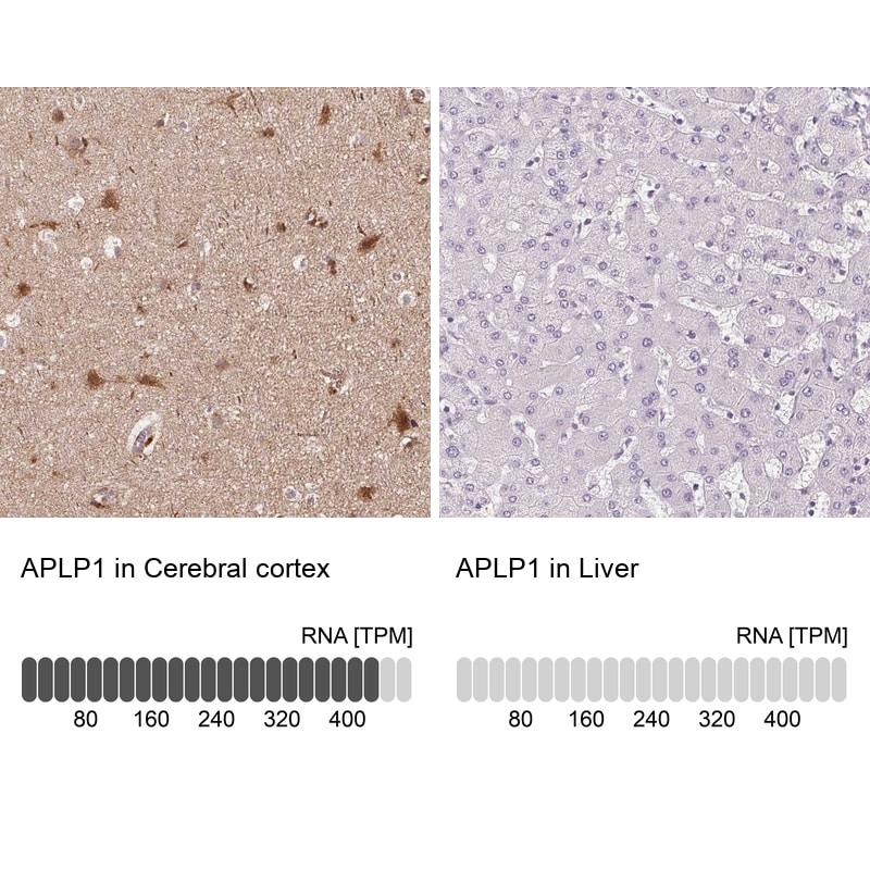 APLP1 Antibody in Immunohistochemistry (IHC)