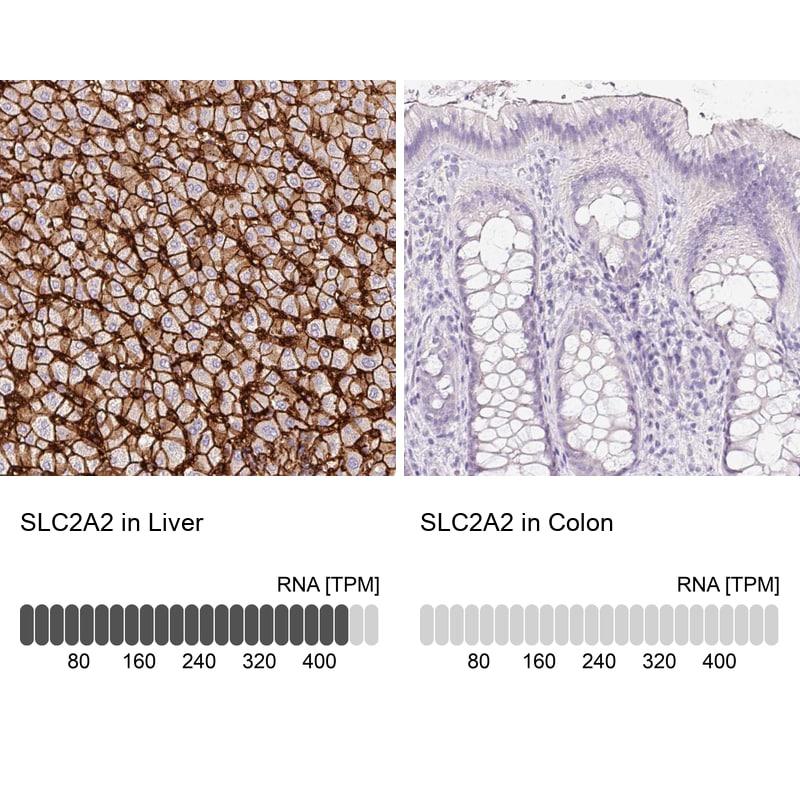 GLUT2 Antibody in Relative expression