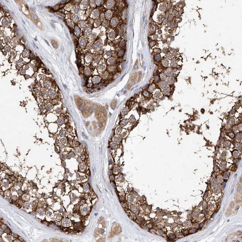 LRRC16A Antibody in Immunohistochemistry (IHC)