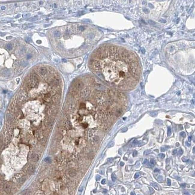 RGN Antibody in Immunohistochemistry (IHC)
