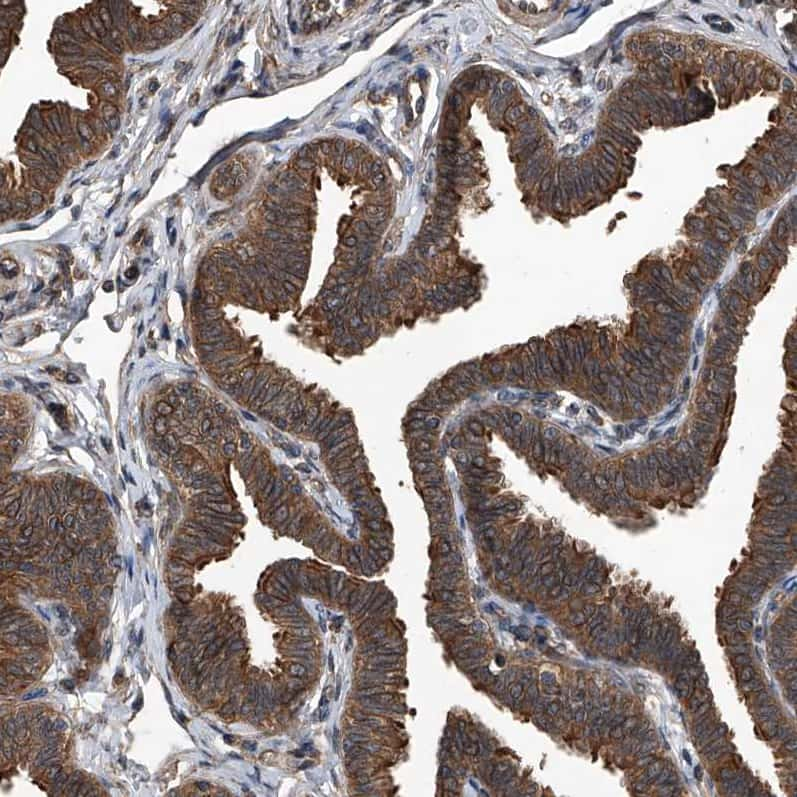 Kir2.1 (KCNJ2) Antibody in Immunohistochemistry (IHC)
