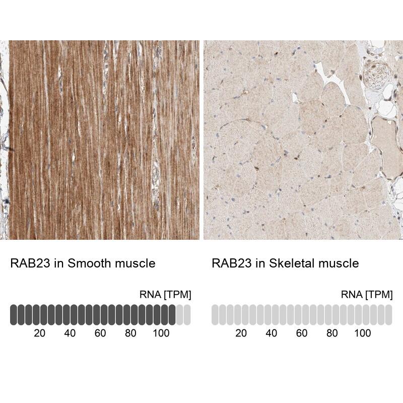 RAB23 Antibody in Immunohistochemistry (IHC)