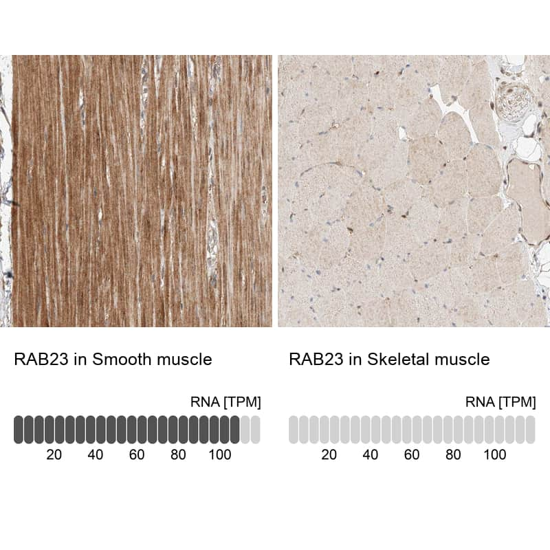 RAB23 Antibody in Relative expression