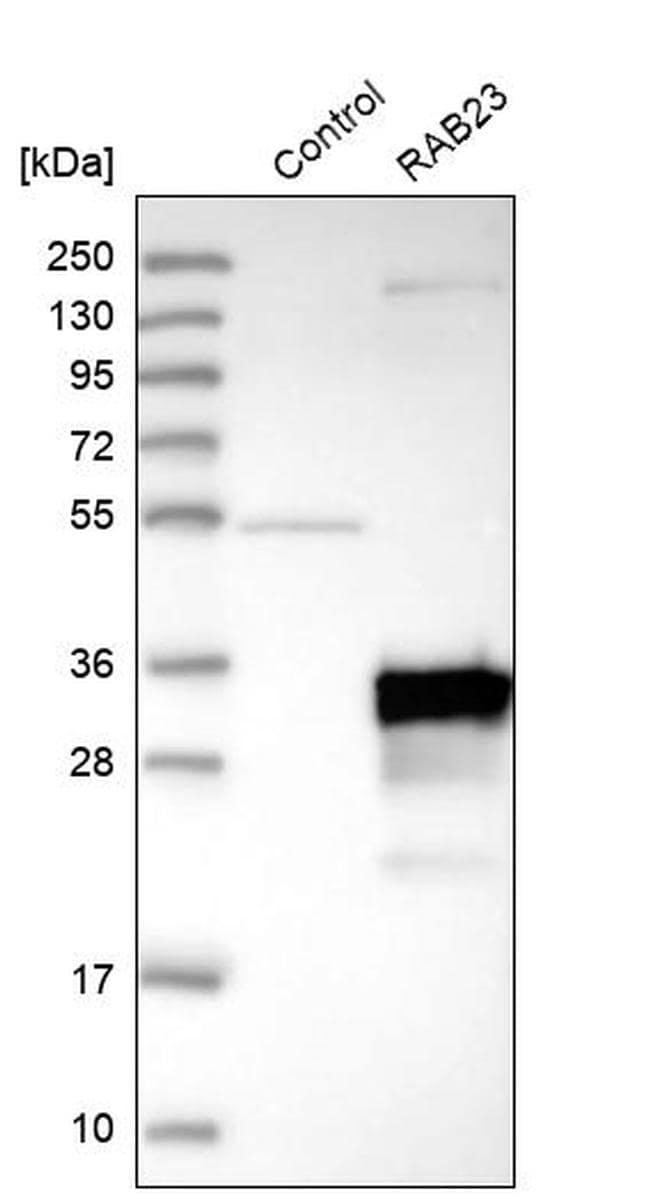 RAB23 Antibody in Western Blot (WB)