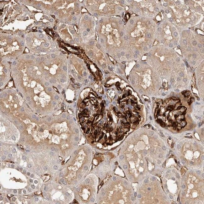 ZNF557 Antibody in Immunohistochemistry (IHC)
