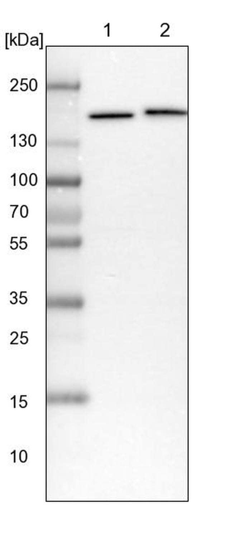 SMC4 Antibody in Western Blot (WB)