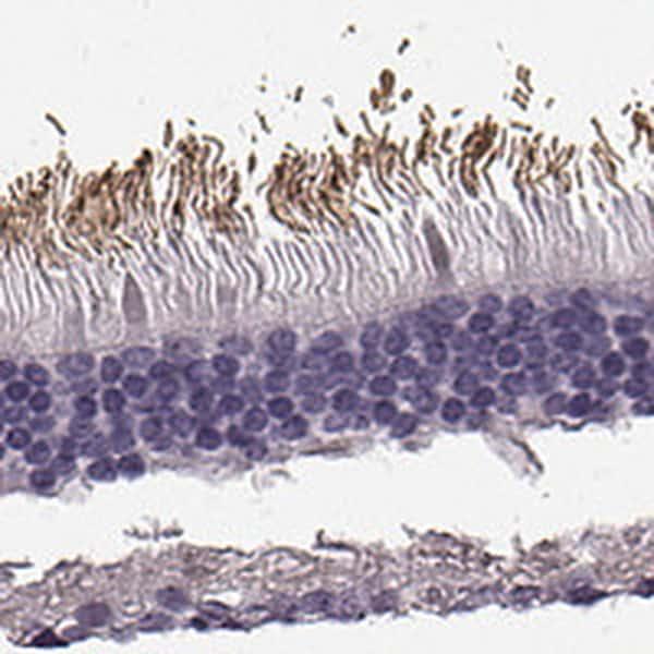 PRPH2 Antibody in Immunohistochemistry (IHC)