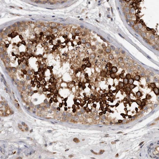 C7orf43 Antibody in Immunohistochemistry (IHC)