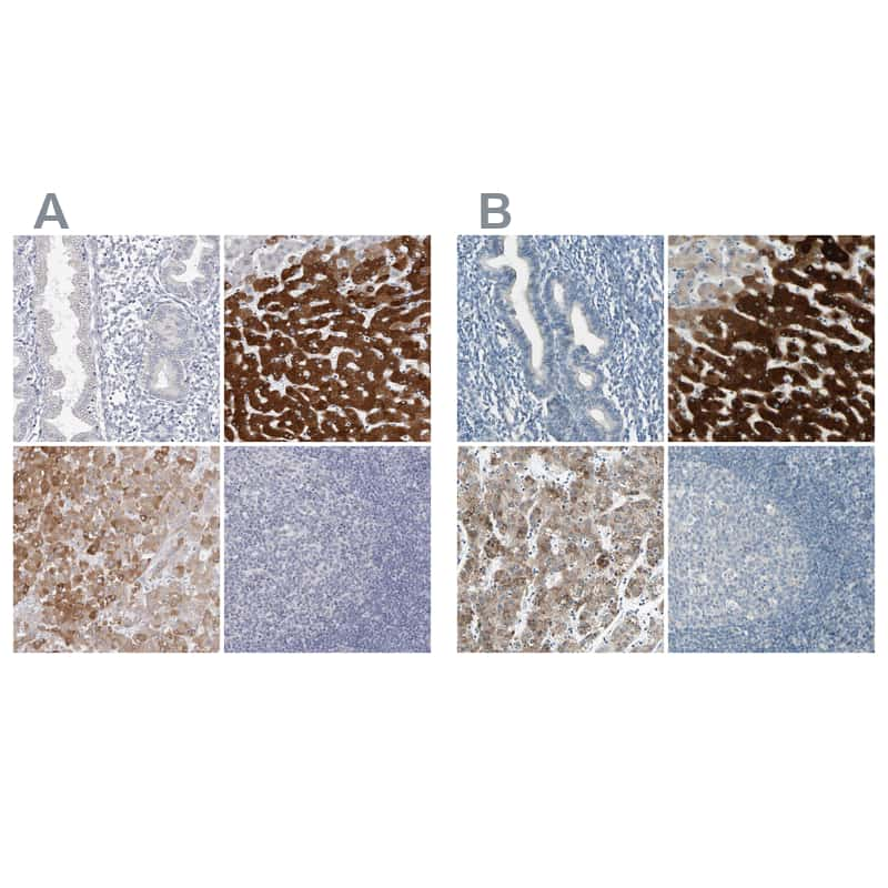 CYP2E1 Antibody in Immunohistochemistry (IHC)