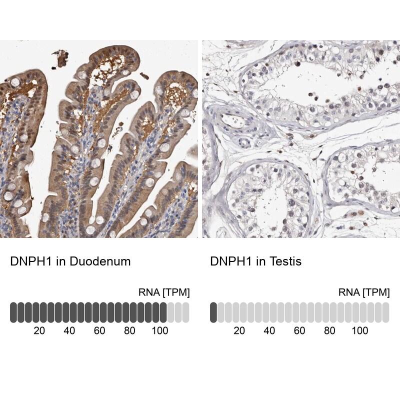 RCL Antibody in Immunohistochemistry (IHC)