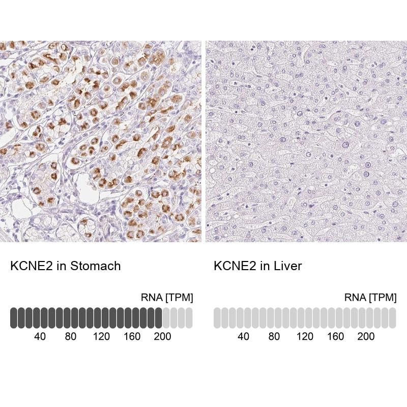 KCNE2 Antibody in Relative expression