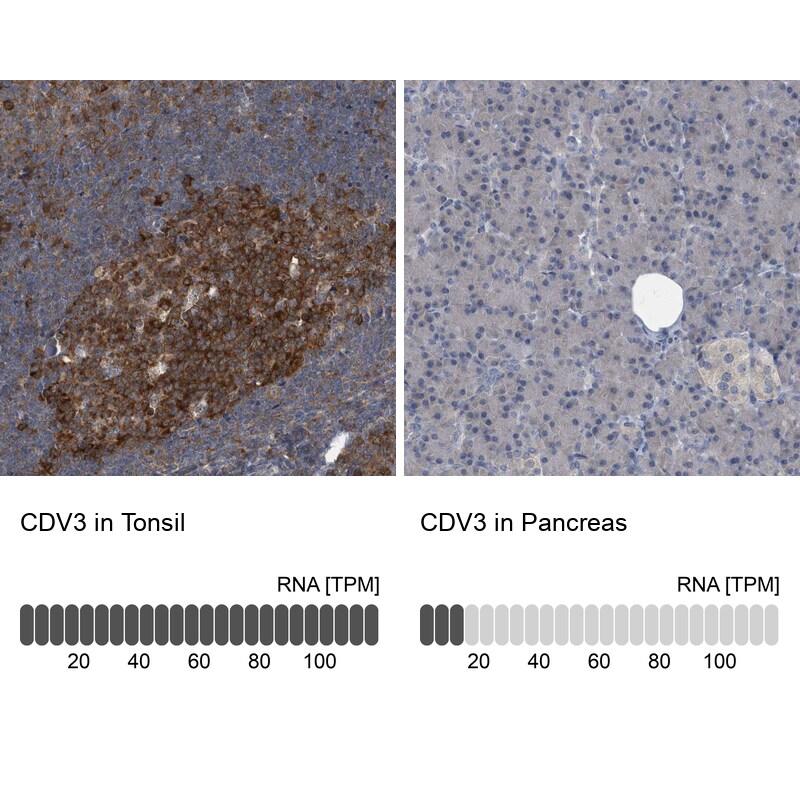 CDV3 Antibody in Relative expression