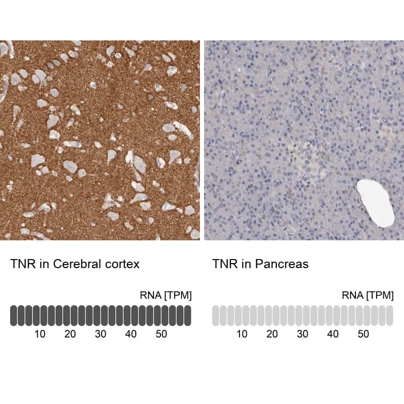 Tenascin R Antibody in Relative expression
