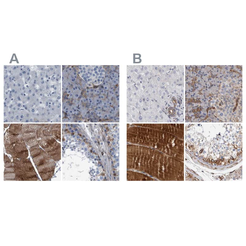 Plectin Antibody in Immunohistochemistry (IHC)