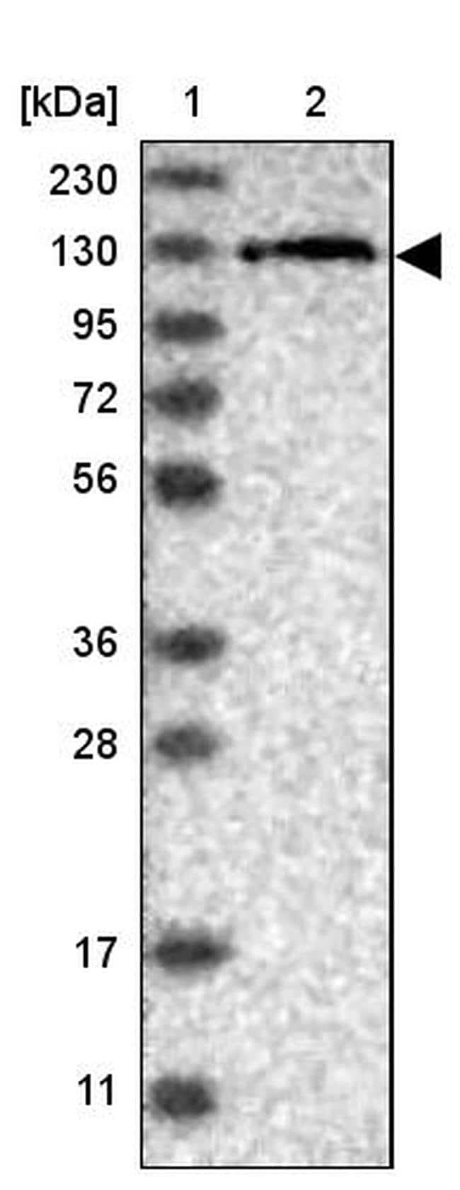 USP48 Antibody in Western Blot (WB)