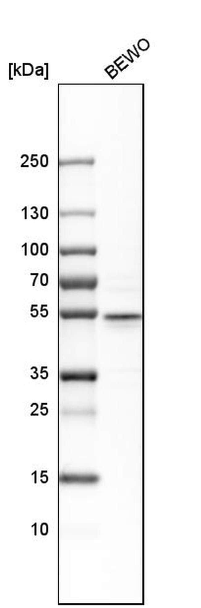 CRISPLD2 Antibody in Western Blot (WB)