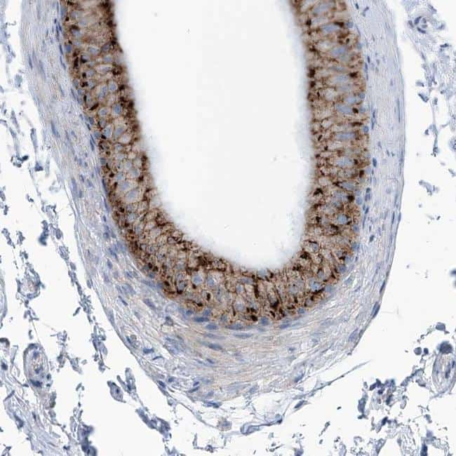 AGPS Antibody in Immunohistochemistry (IHC)