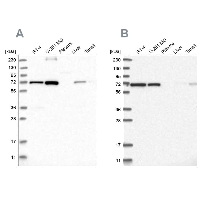 AGPS Antibody in Western Blot (WB)