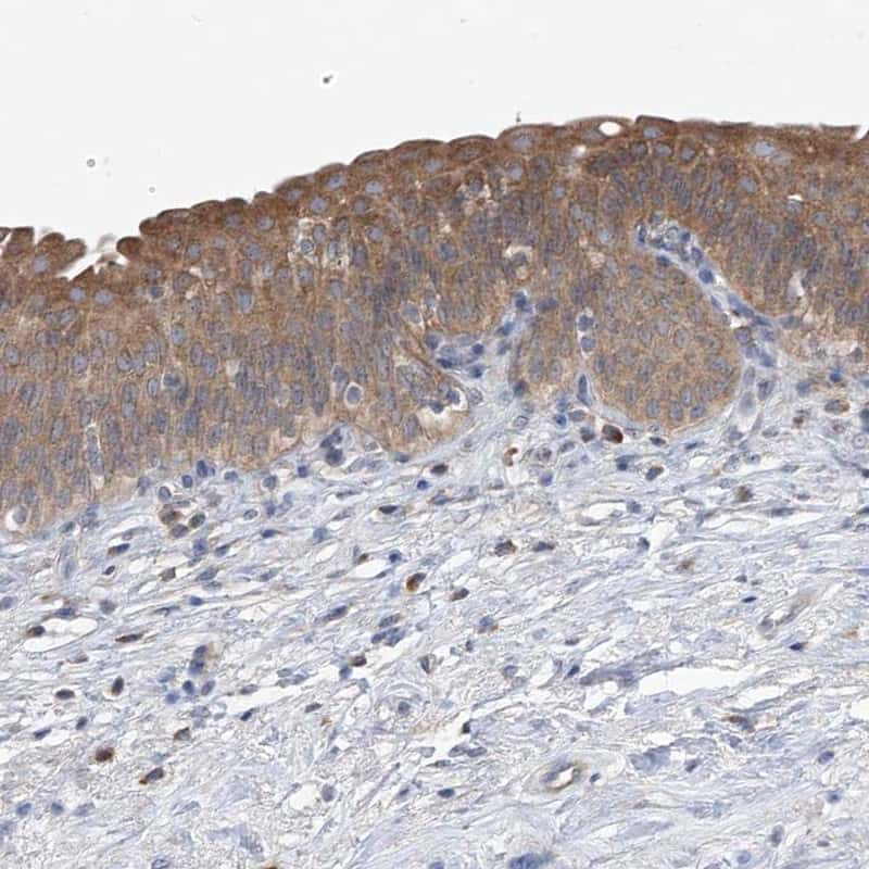 UFL1 Antibody in Immunohistochemistry (IHC)