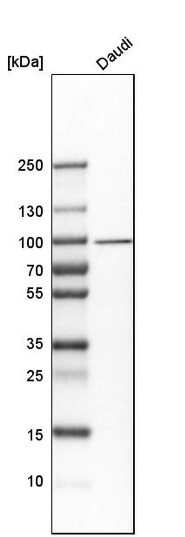 UFL1 Antibody in Western Blot (WB)