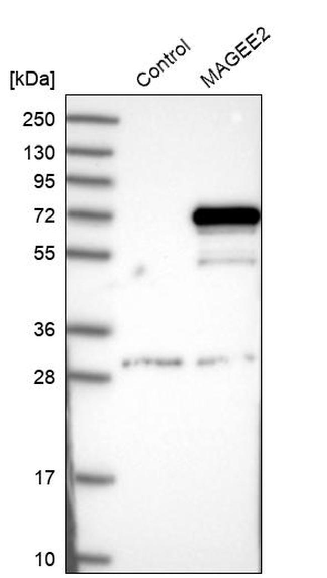 MAGEE2 Antibody in Western Blot (WB)