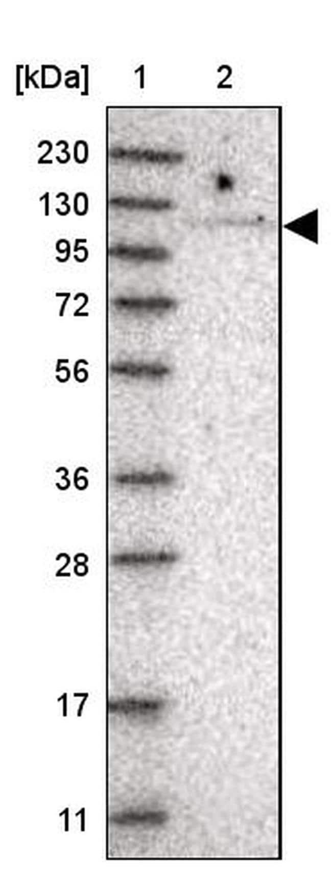 TBC1D2 Antibody in Western Blot (WB)