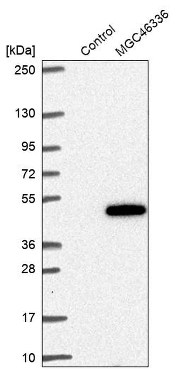 ZNF843 Antibody in Western Blot (WB)