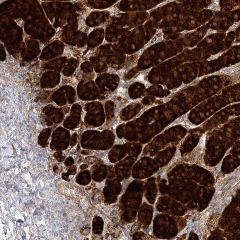 C2CD2 Antibody in Immunohistochemistry (IHC)