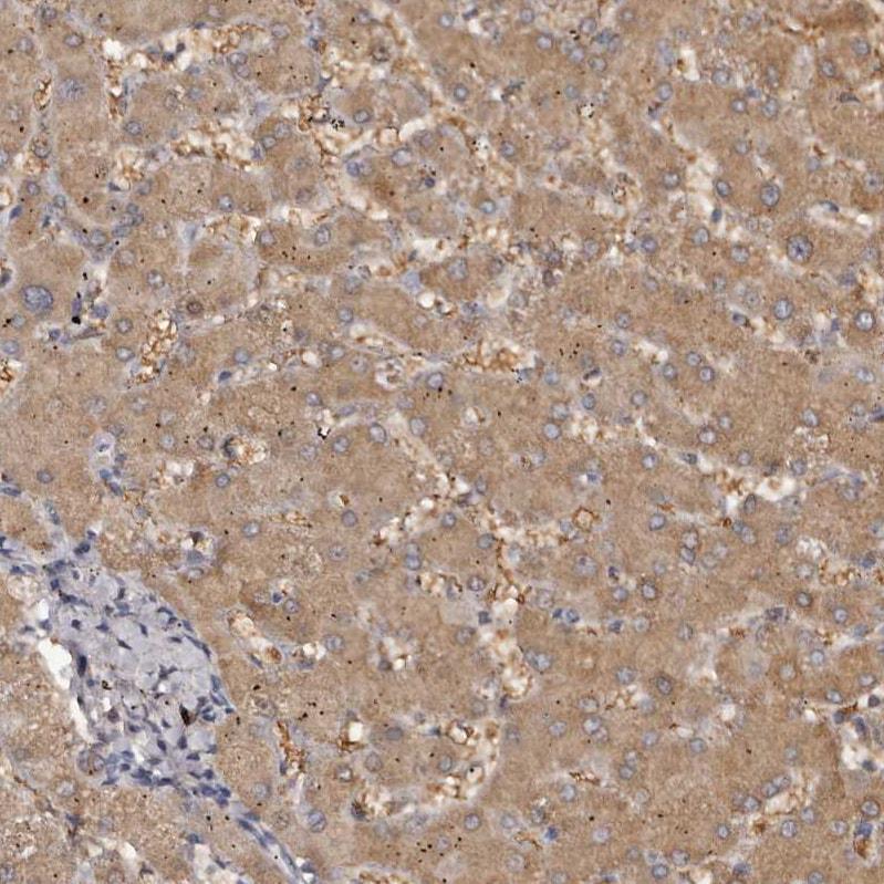 Kir6.1 (KCNJ8) Antibody in Immunohistochemistry (IHC)