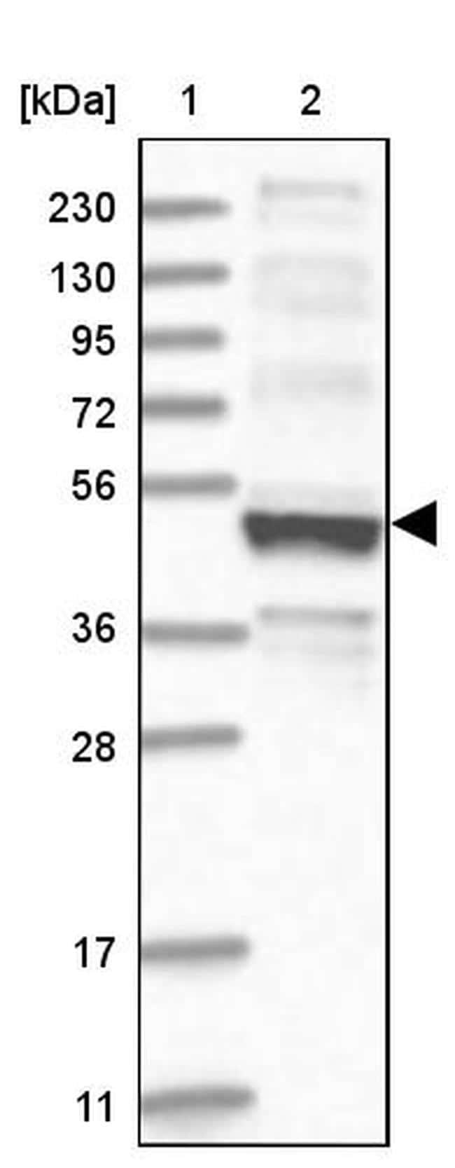 Kir6.1 (KCNJ8) Antibody in Western Blot (WB)